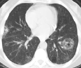 Sjogren's Chest X-ray